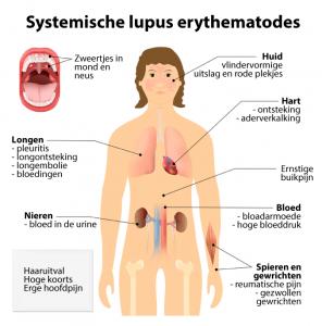 Symptomen SLE